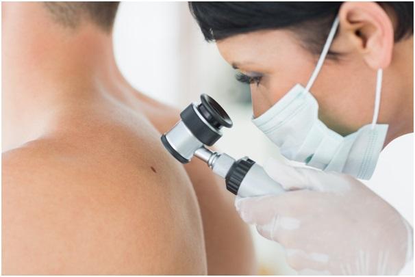 dermatoskopy